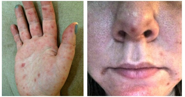 hand and mouth disease in adults