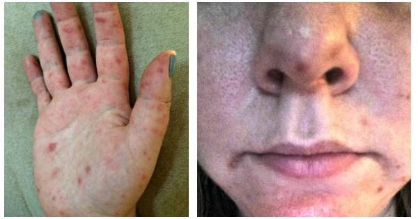erythema toxicum vs neonatal acne