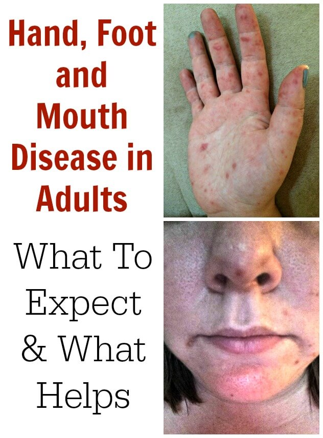 Hand, Foot and Mouth Disease in Adults. Recently my daughter (aged 3) contracted Hand, Foot and Mouth Disease which prompted me to read everything I could find on HFMD