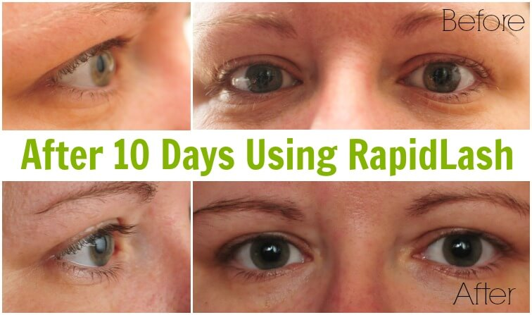 Making Eyelashes Stand Out In Glasses - After 10 Days Using RapidLash