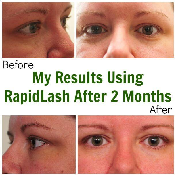 My Results After Using RapidLash For Two Months